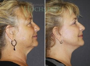 Face Lift Patient 01 before and after facing right.