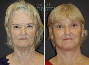 Face Lift Patient 02 before and after facing forward.