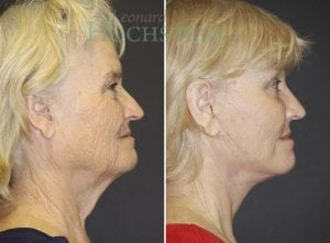 Face Lift Patient 02 before and after facing right.