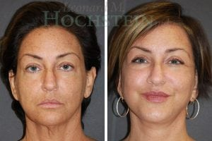 Face Lift Patient 04 before and after facing forward.