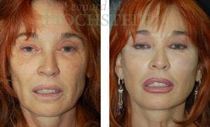 Face Lift Patient 05 before and after facing forward.