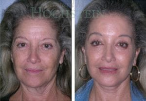 Face Lift Patient 06 before and after facing forward.