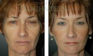 Face Lift Patient 07 before and after facing forward.
