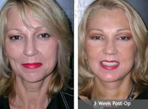 Face Lift Patient 08 before and after facing forward.