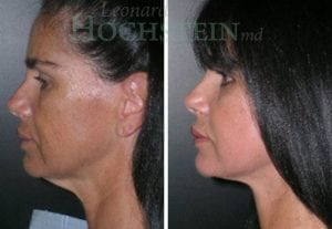 Face Lift Patient 09 before and after facing left.