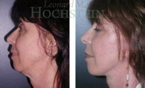 Face Lift Patient 10 before and after facing left.