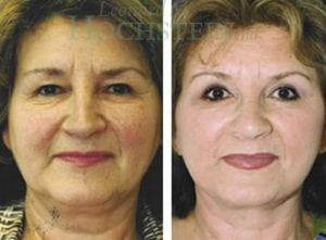 Face Lift Patient 11 before and after facing forward.