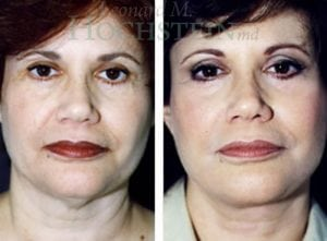 Face Lift Patient 12 before and after facing forward.