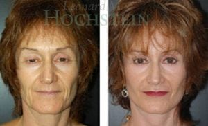 Face Lift Patient 13 before and after facing forward.