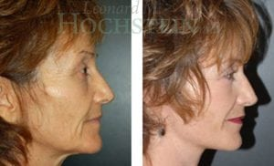 Face Lift Patient 13 before and after facing right.