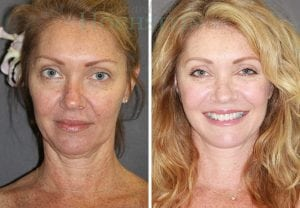 Face Lift Patient 03 before and after facing forward.