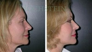 Face Lift Patient 14 before and after facing right.