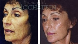 Face Lift Patient 15 before and after facing forward.