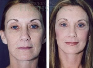 Face Lift Patient 16 before and after facing forward.