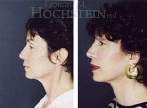 Face Lift Patient 17 before and after facing left.