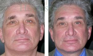 Face Lift Patient 18 before and after facing forward.
