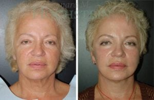 Face Lift Patient 19 before and after facing forward.