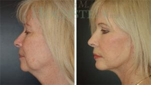 Face Lift Patient 20 before and after facing left.