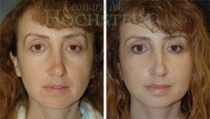 Face Lift Patient 21 before and after facing forward.