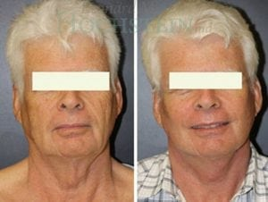 Face Lift Patient 22 before and after facing forward.