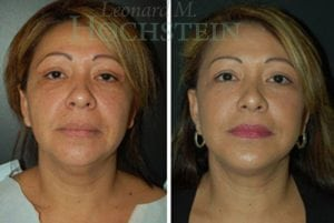 Face Lift Patient 23 before and after facing forward.