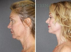 Face Lift Patient 03 before and after facing left.