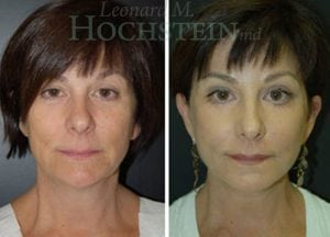 Face Lift Patient 24 before and after facing forward.