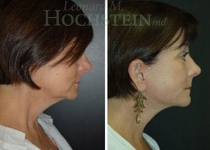 Face Lift Patient 24 before and after facing right.