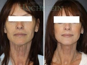 Face Lift Patient 25 before and after facing forward.