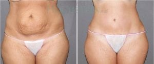 Tummy Tuck Patient 04 before and after facing front.