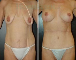 Mommy Makeover Patient 13 before and after facing front.
