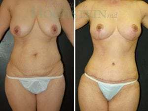 Mommy Makeover Patient 19 before and after facing front.