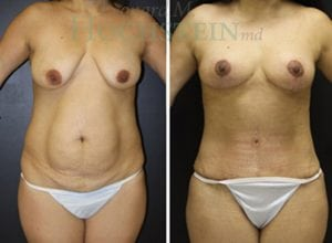 Mommy Makeover Patient 24 before and after facing front.