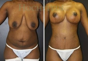 Mommy Makeover Patient 26 before and after facing front.