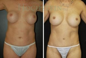 Mommy Makeover Patient 29 before and after facing forward.