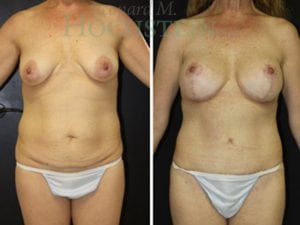 Mommy Makeover Patient 30 before and after facing front.