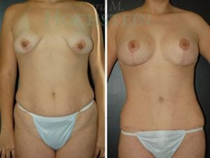 Mommy Makeover Patient 31 before and after facing front.