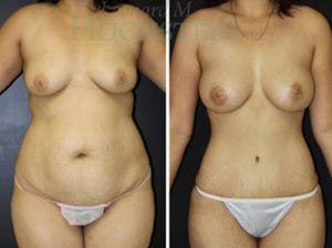 Mommy Makeover Patient 33 before and after facing front.