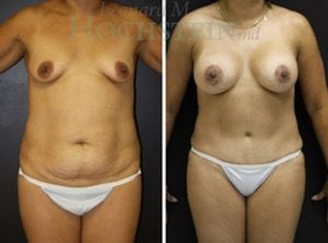 Mommy Makeover Patient 39 before and after facing front.