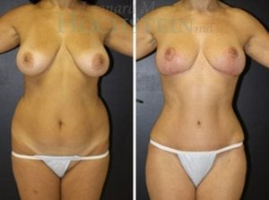Mommy Makeover Patient 40 before and after facing front.