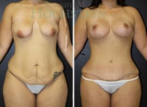 Mommy Makeover Patient 41 before and after facing front.