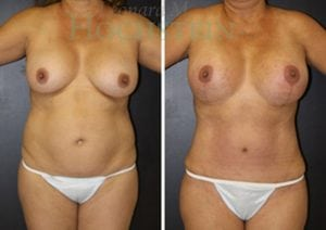 Mommy Makeover Patient 42 before and after facing front.