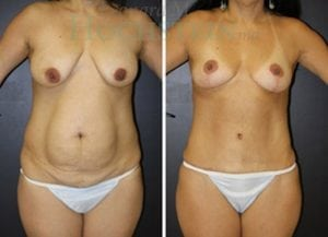 Mommy Makeover Patient 43 before and after facing front.