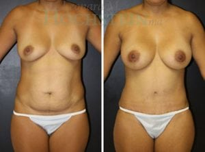 Mommy Makeover Patient 45 before and after facing front.