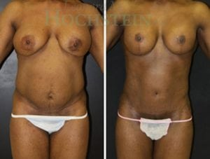 Mommy Makeover Patient 46 before and after facing front.