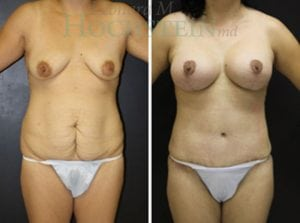 Mommy Makeover Patient 47 before and after facing front.