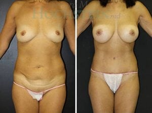 Mommy Makeover Patient 48 before and after facing front.