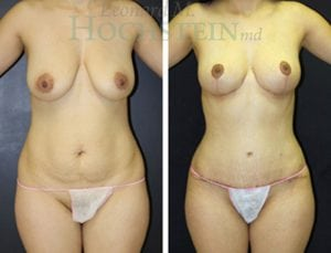 Mommy Makeover Patient 50 before and after facing front.