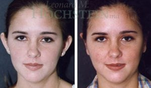 Otoplasty Patient 01 before and after facing forward.