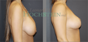 Breast Reduction Patient 19 before and after facing right.